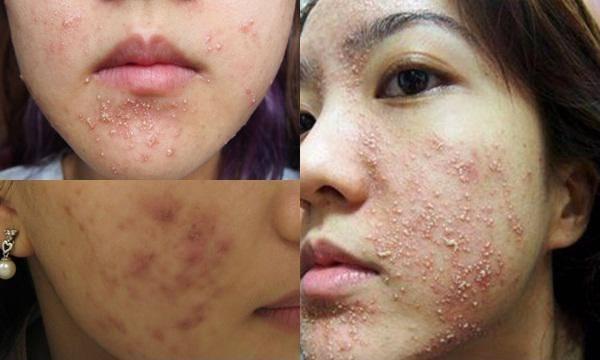 Một số ảnh da mặt sau khi dùng rượu thuốc