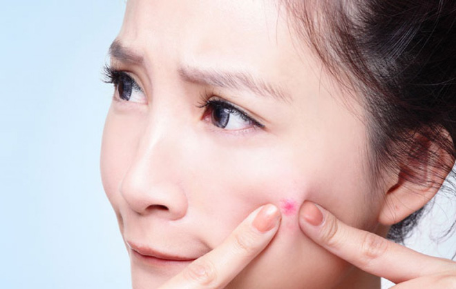 Cách phục hồi da sau khi nặn mụn